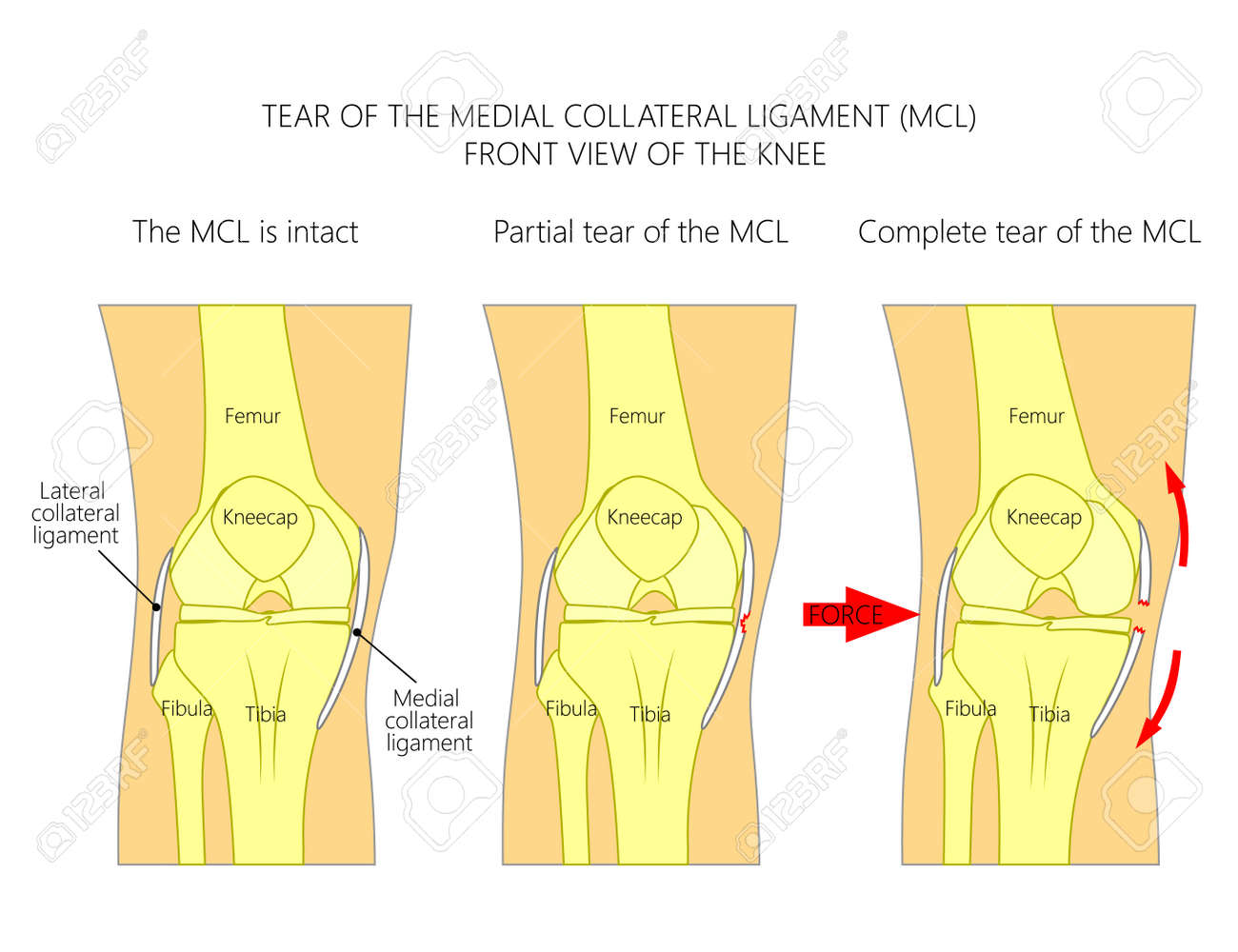 Vector Illustration Anatomy Of A Knee Joint With Healthy Ligaments ...