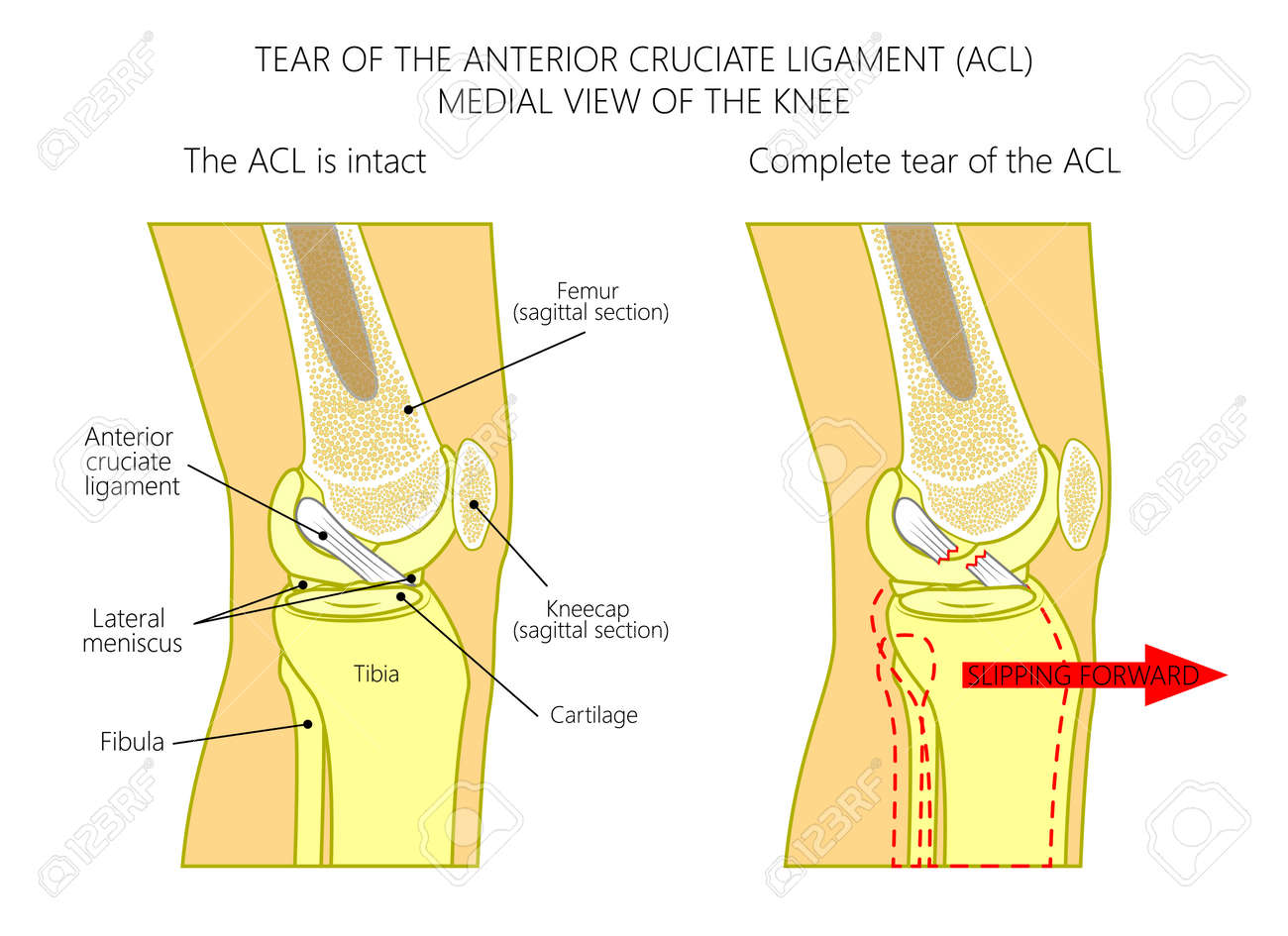 Vector Illustration Anatomy Of A Knee Joint With Healthy And ...