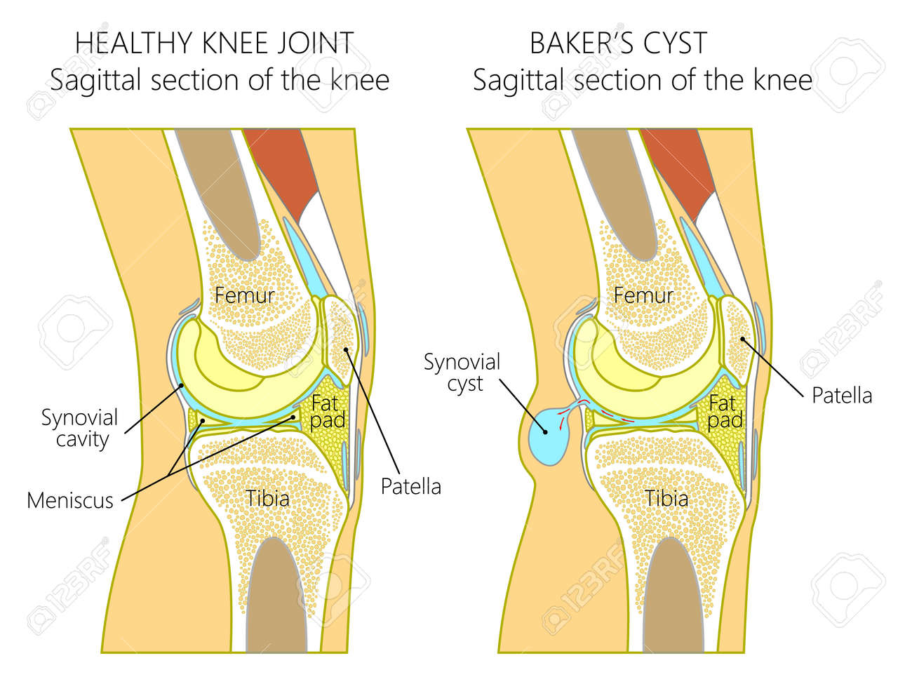 Vector illustration of a healthy human knee joint and unhealthy knee with Baker's cyst. Anatomy of human knee, sagittal section of the knee. for advertising and medical publications. EPS 10. - 91011202