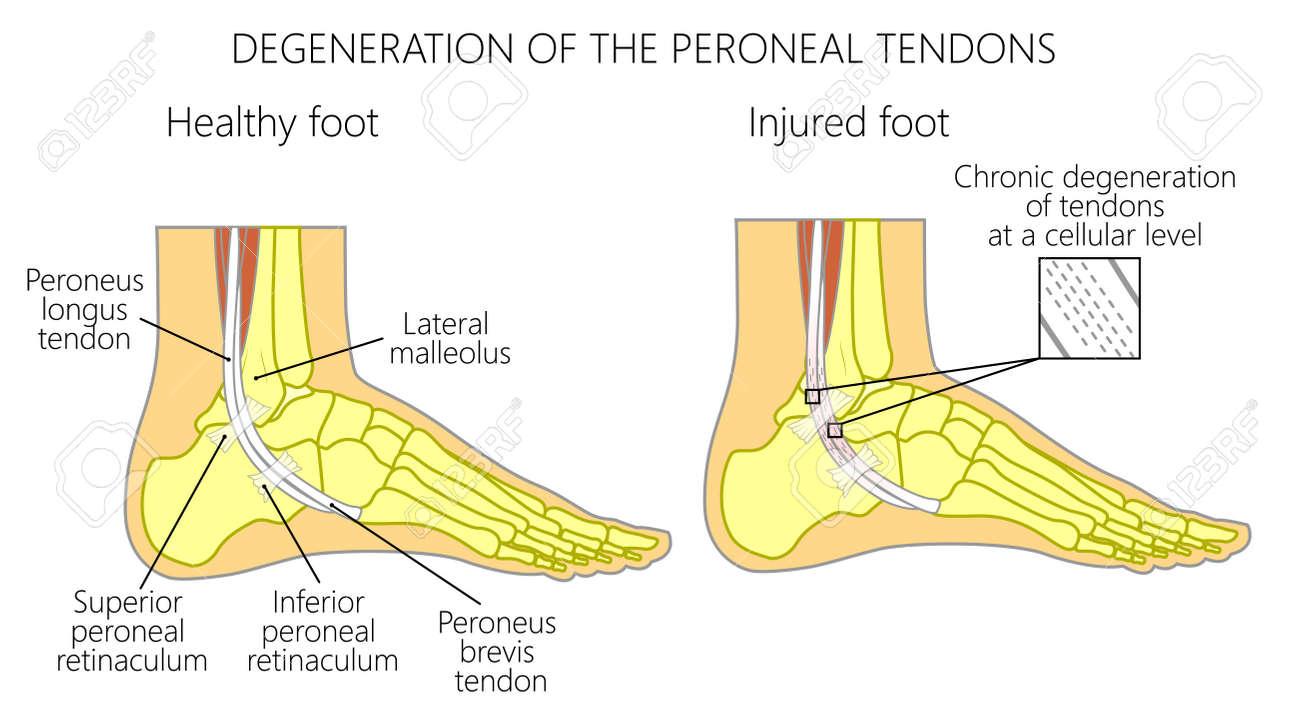 Ilustración De Vector De Lesiones Del Tendón Peroneo. Degeneración ...