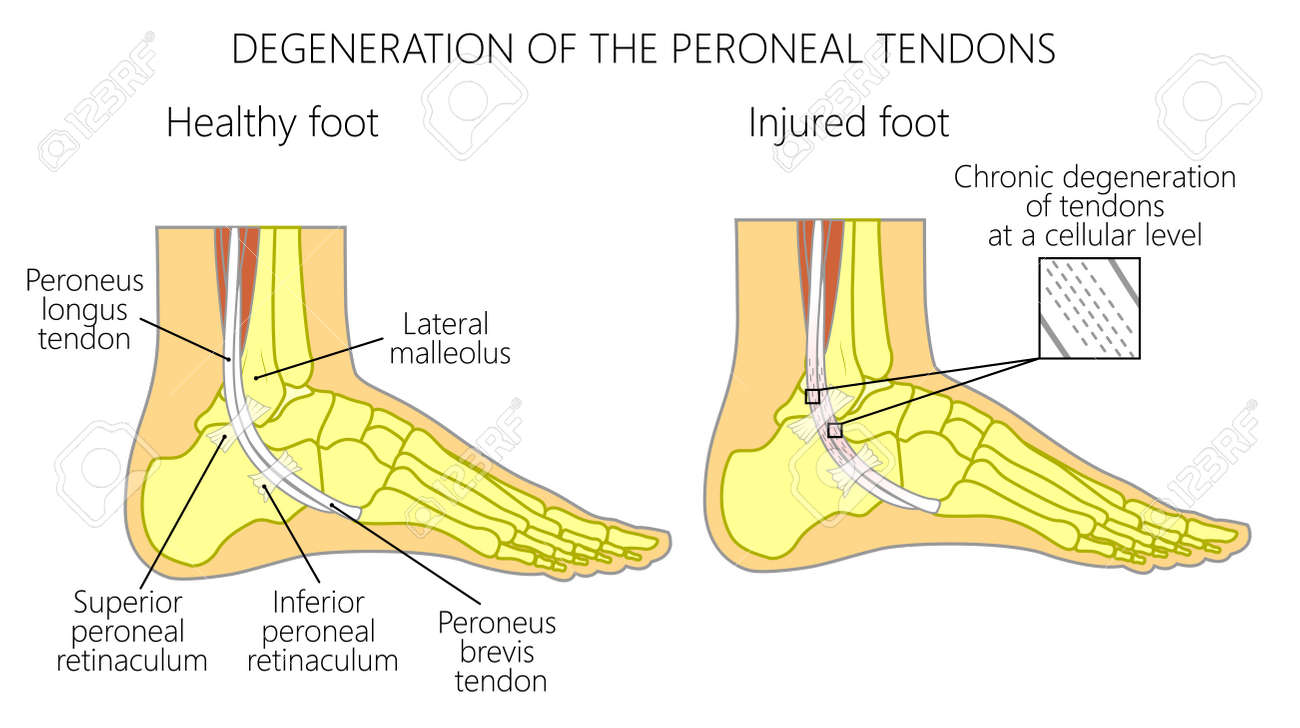 Vector Illustration Of Peroneal Tendon Injuries Degeneration
