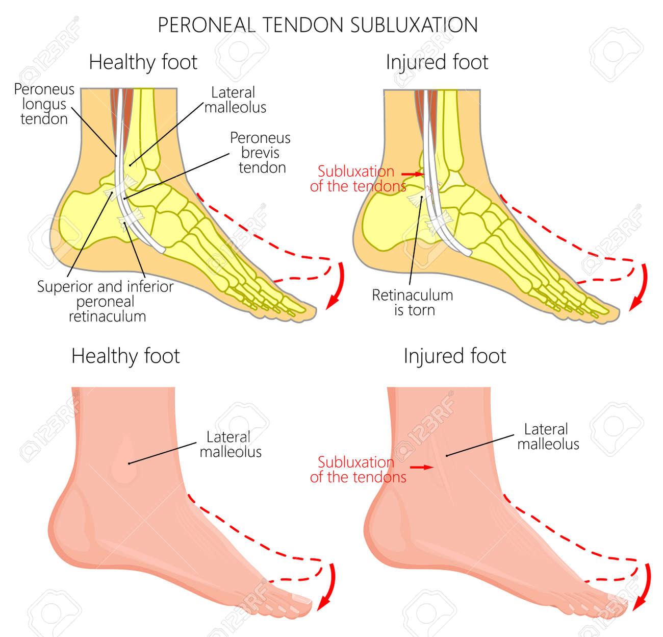 Ilustración De Vector De Lesiones Del Tendón Peroneo. Luxación O ...