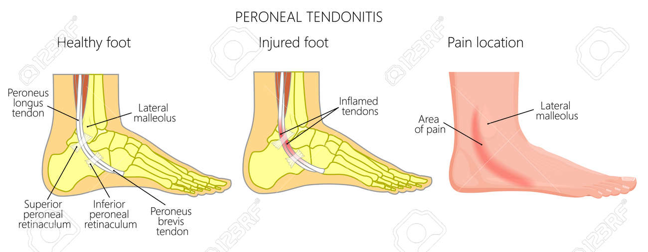 Vector Illustration Of Peroneal Tendon Injuries Peroneal Tendonitis