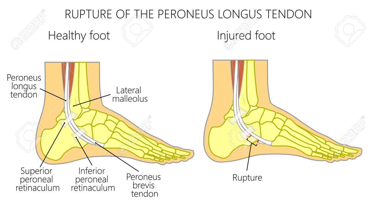 Vector Illustration Of Peroneal Tendon Injuries. Rupture Of The ...