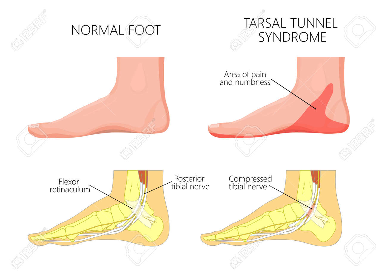 90919033 illustration of healthy human foot and medial ankle injury tarsal tunnel syndrome illustration of healthy human foot and medial ankle injury tarsal