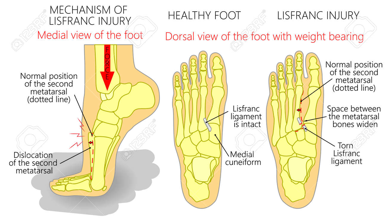 Vector Illustration Of A Healthy Human Foot And A Foot With Lisfranc ...