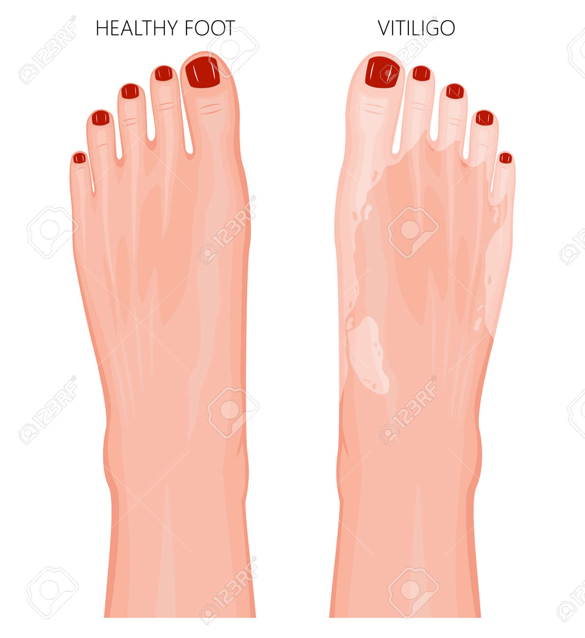 Vector Illustration Of A Healthy Foot With Red Toenails And A ...
