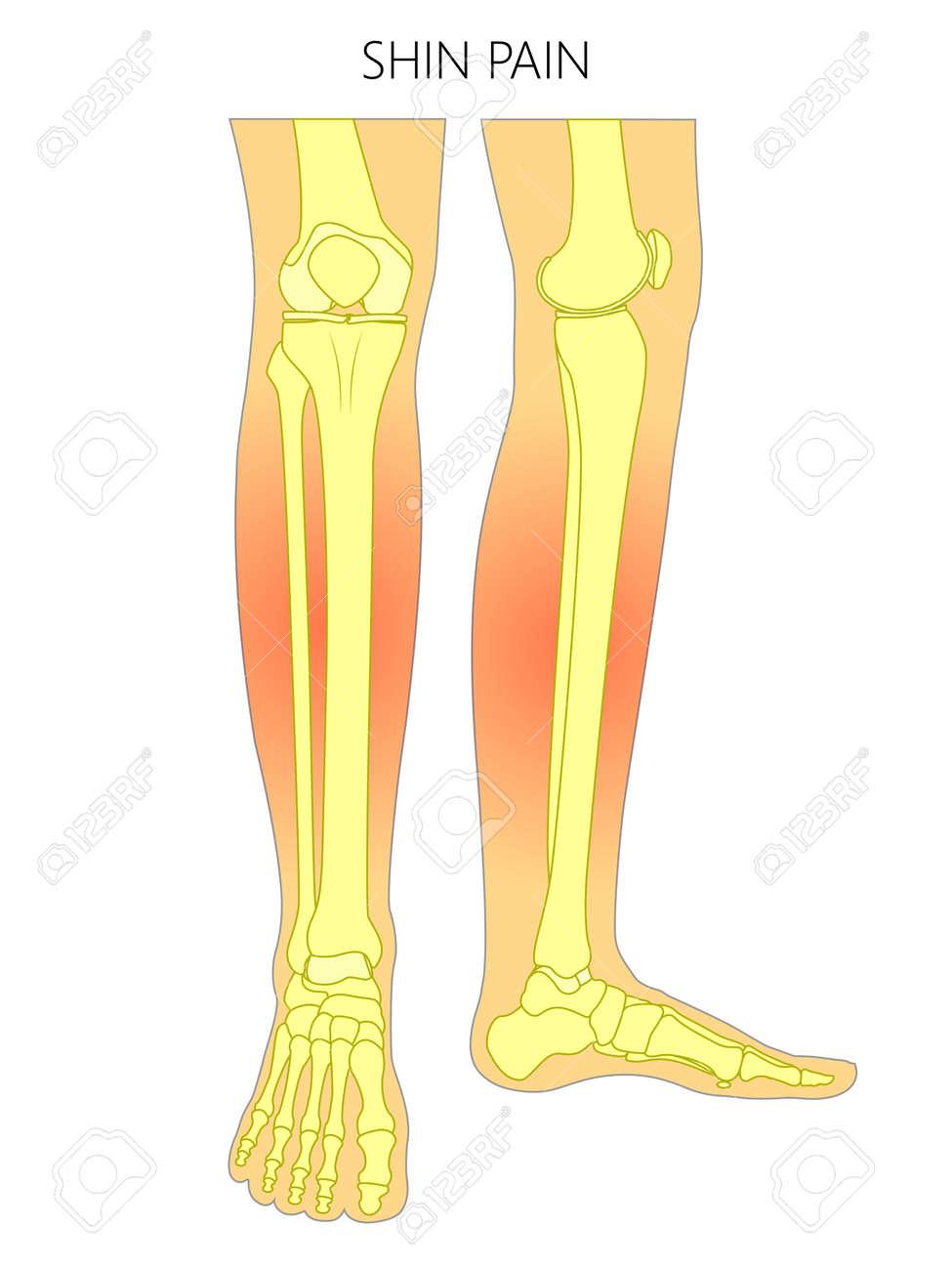 Ilustración Vectorial De Huesos De Una Pierna Humana (vista Anterior ...