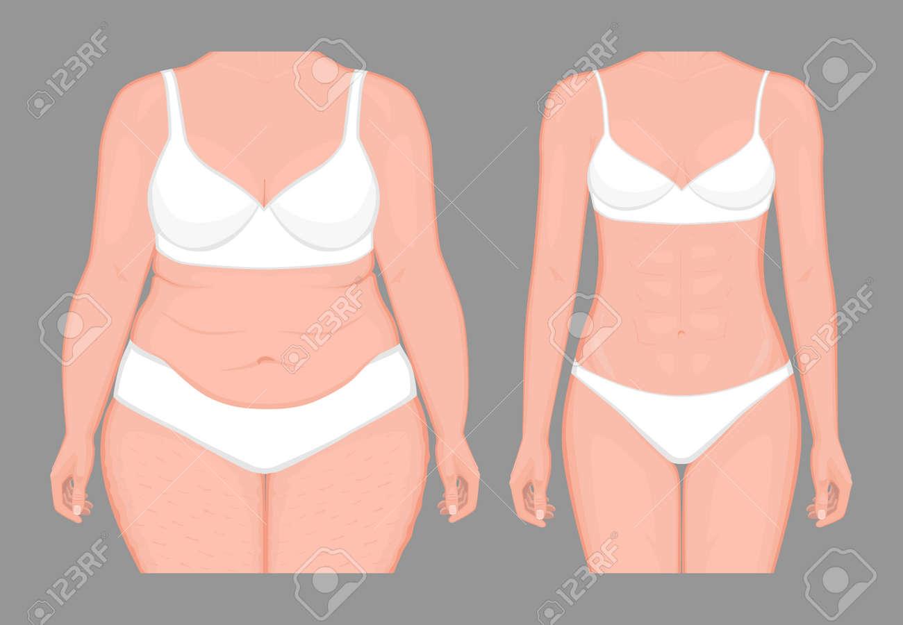 pérdida de peso gorda