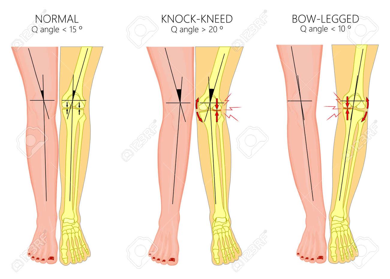 Human Leg Diagram 1218danishfashion Mode