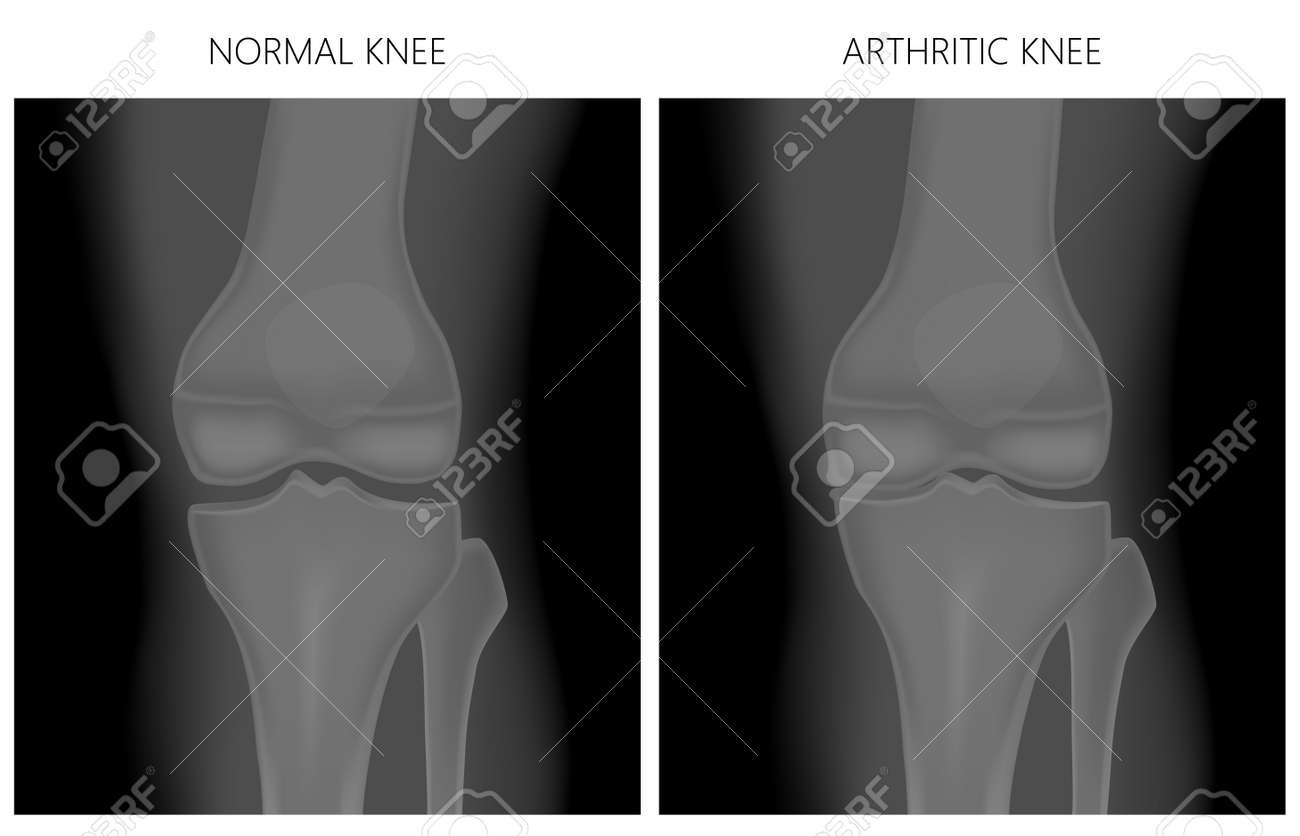 Vector Illustration Anatomy Front X Ray Of A Healthy Knee Joint