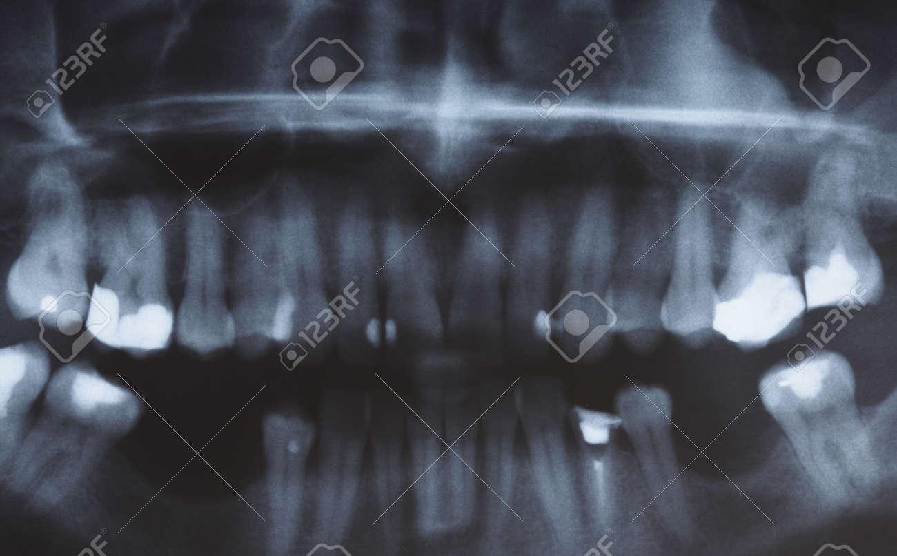 Exploración De Imagen De Rayos X Panorámica De Los Seres Humanos Los ...