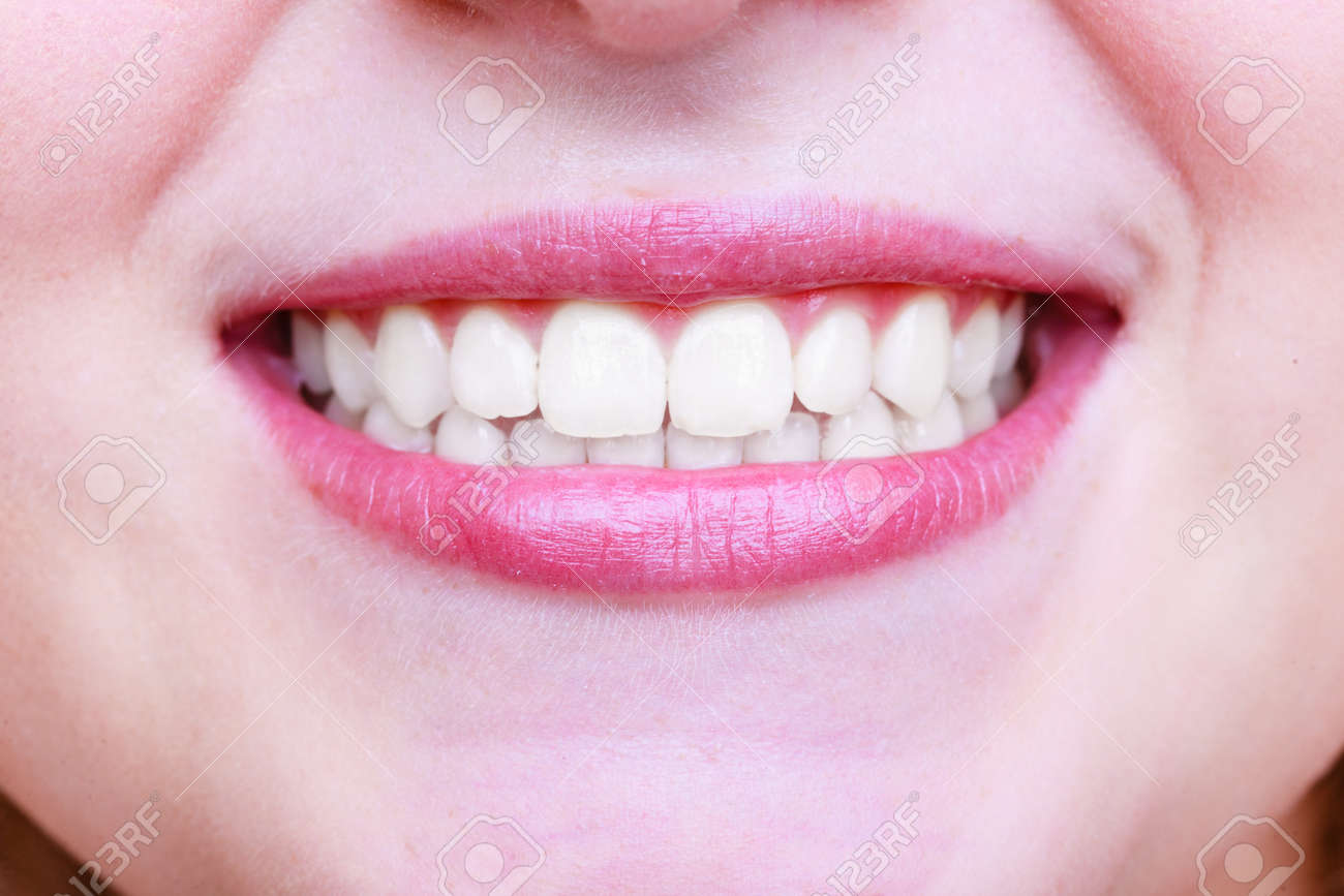 Young woman with healthy teeth. Dental care - 141105430