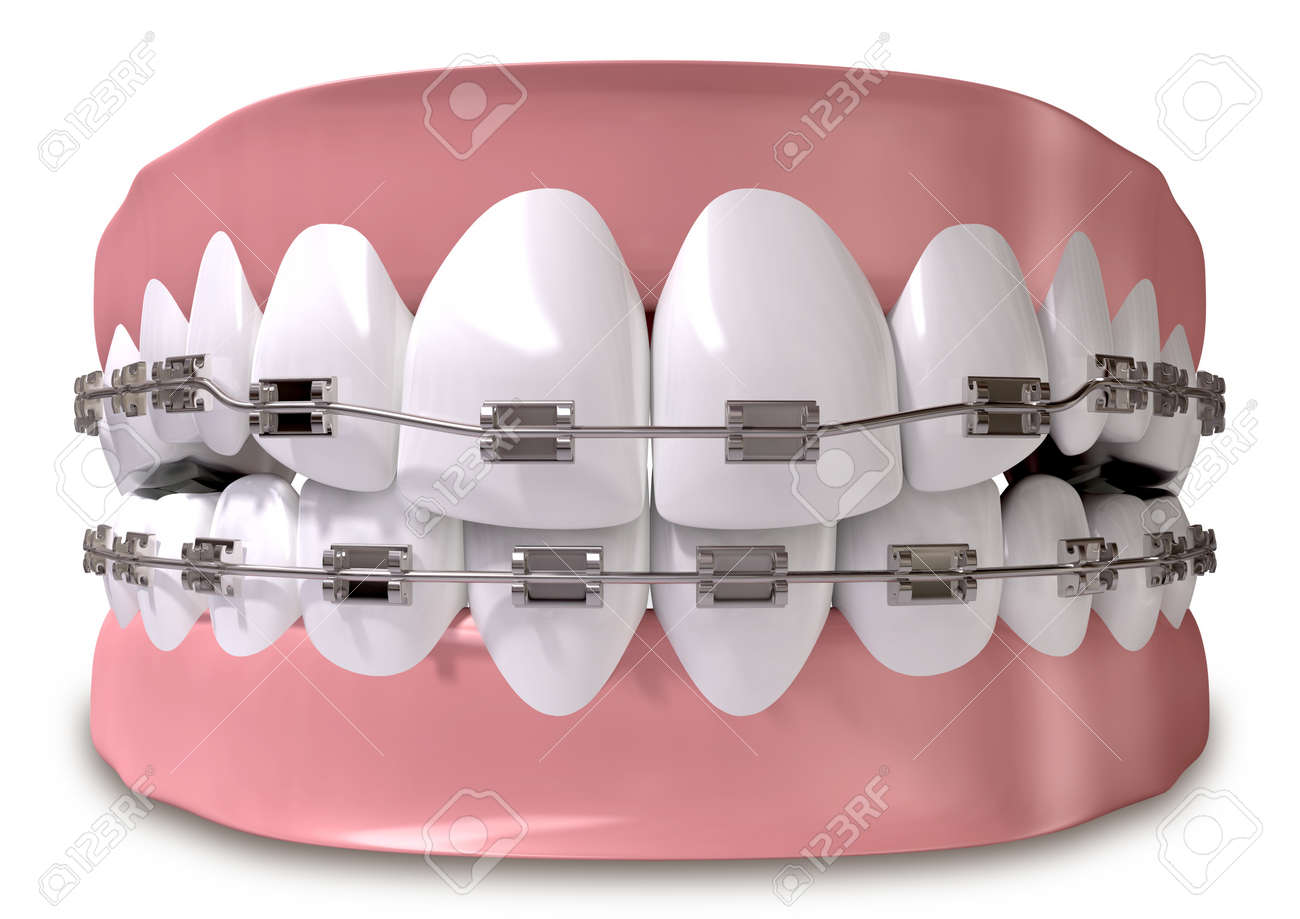 A Closed Set Of Human Teeth With Metal Braces Fitted Set In Gums