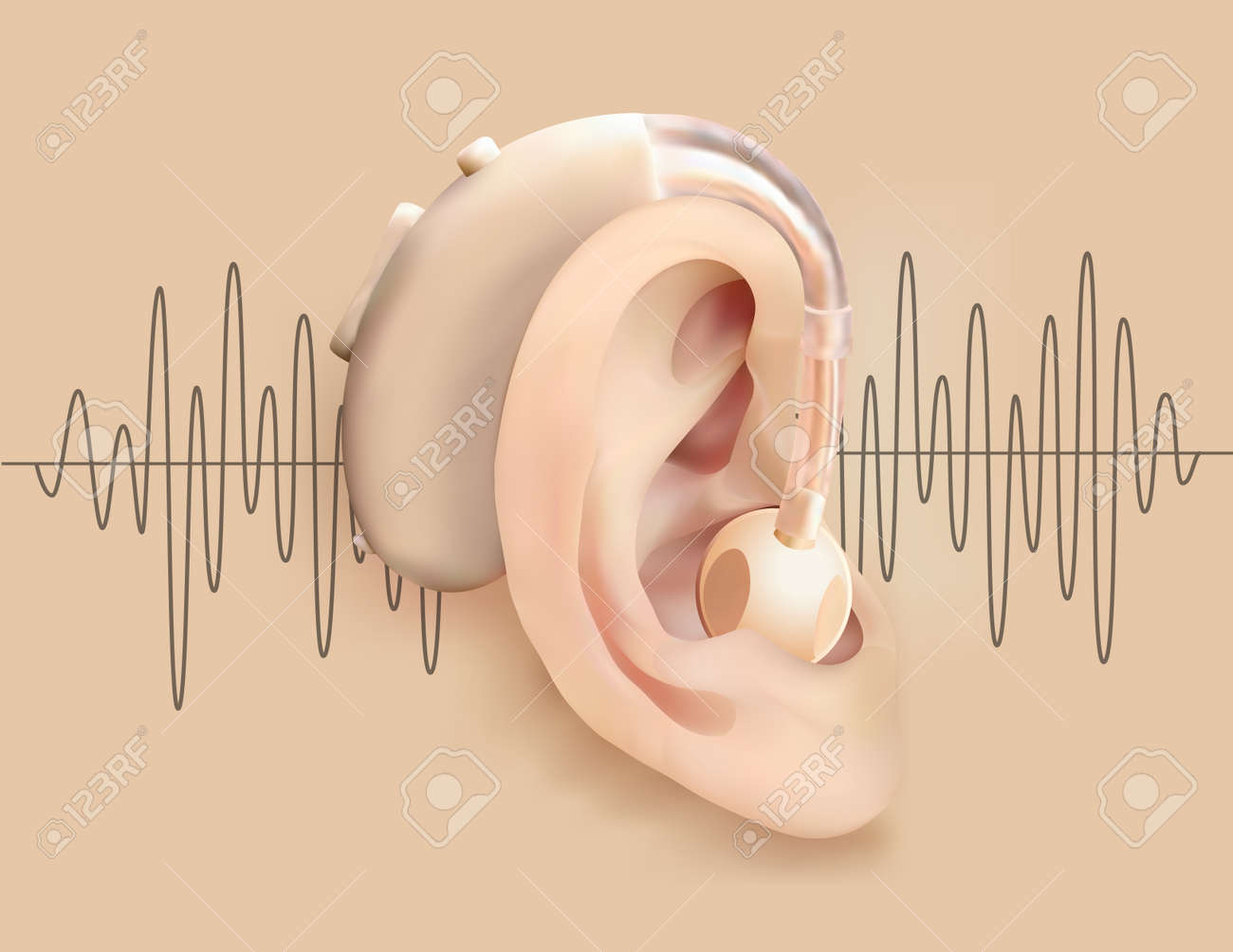 Illustration of a hearing aid behind ear on a background of sound wave pattern. - 97538485