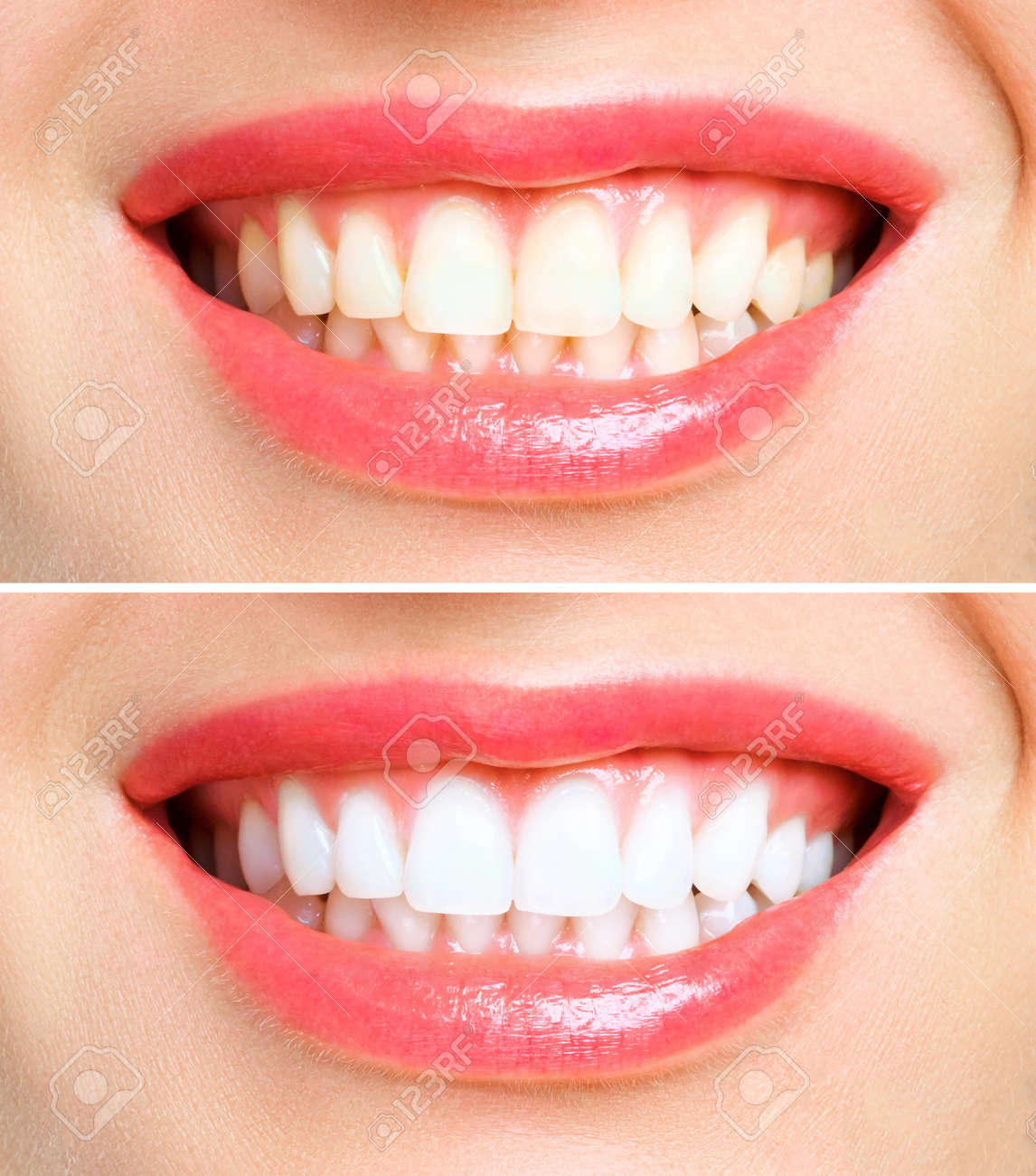 woman teeth before and after whitening. Over white background. Dental clinic patient. Image symbolizes oral care dentistry, stomatology - 131458308