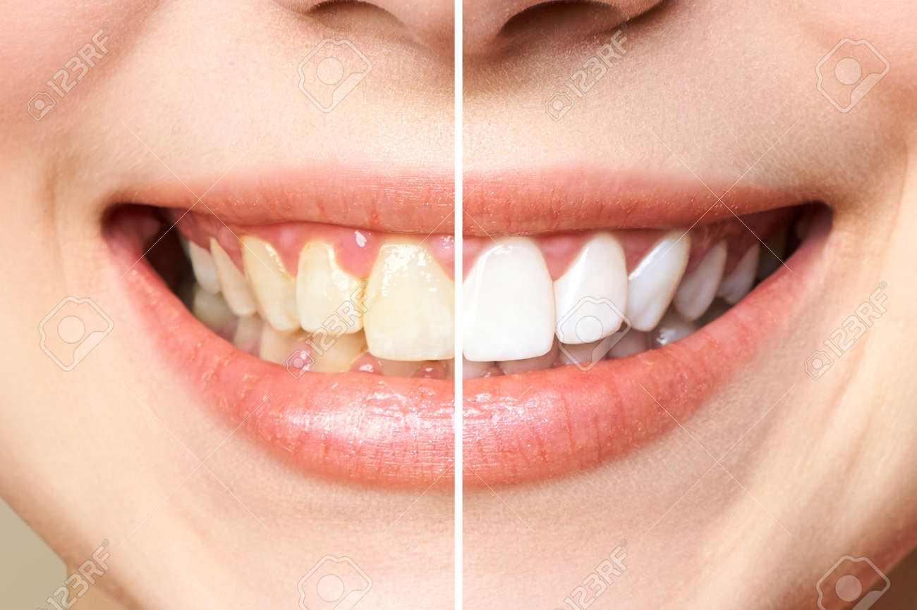 woman teeth before and after whitening. - 135850217