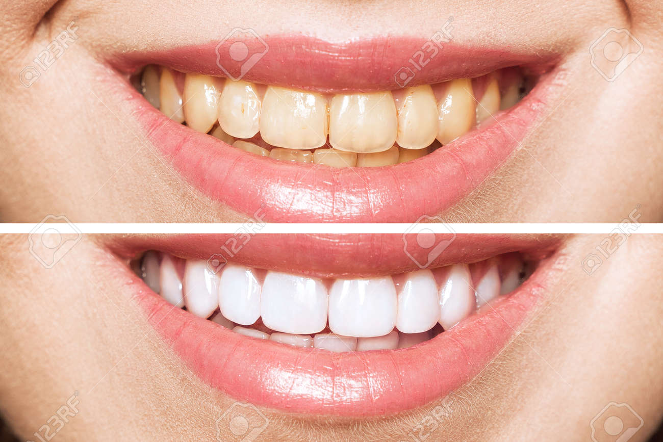 woman teeth before and after whitening. Over white background. Dental clinic patient. Image symbolizes oral care dentistry, stomatology. - 137729831