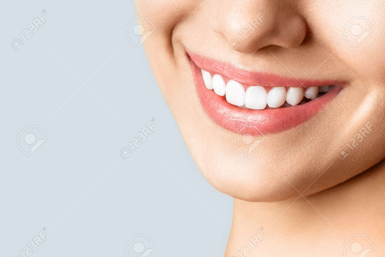 Beautiful female smile after teeth whitening procedure. Dental care. Dentistry concept. - 147266605
