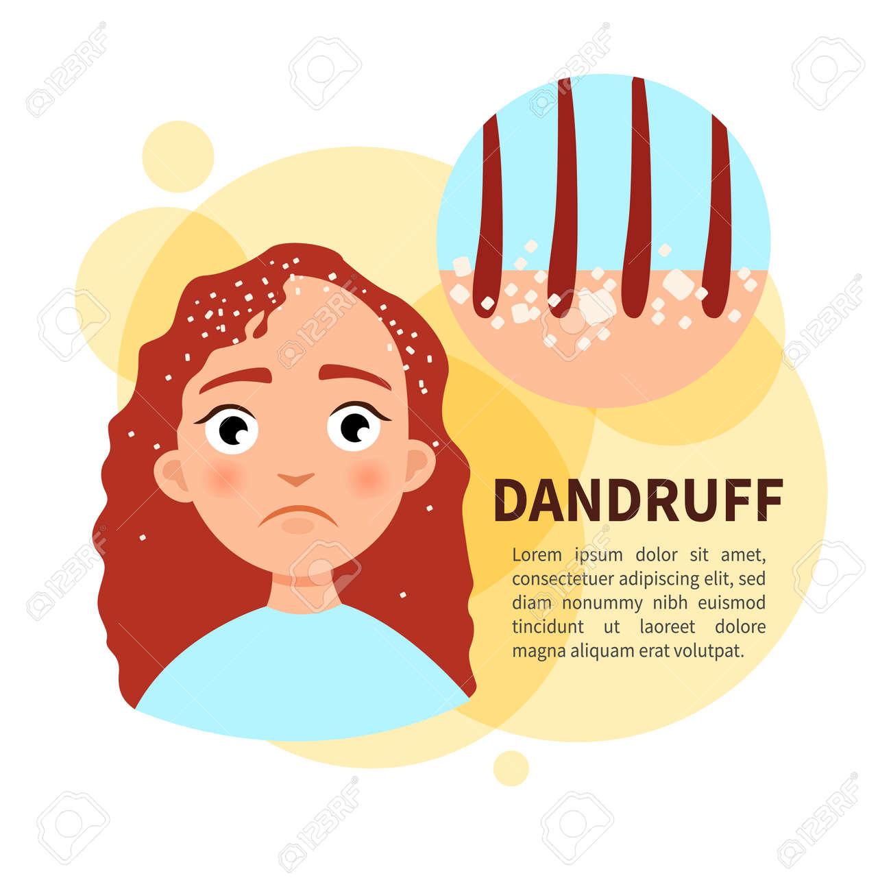 Vector poster. Dandruff. Sad cute girl. Disease of the skin. - 112339820