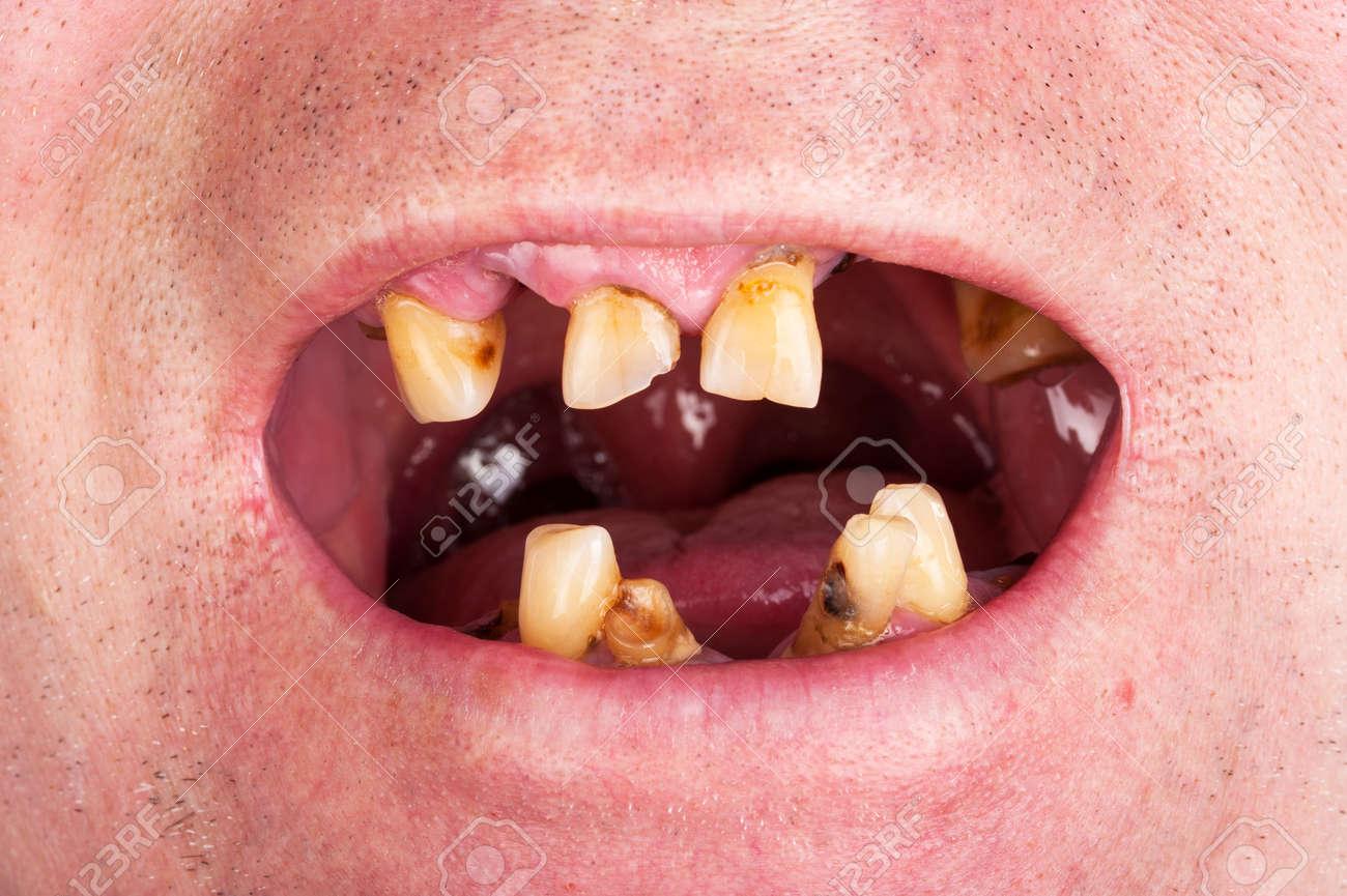 У меня зубы в ужасном состоянии