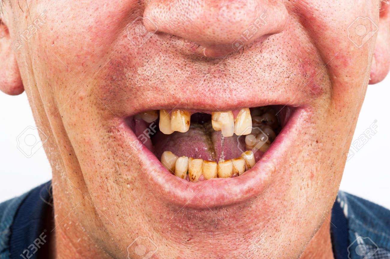 Bad teeth, smoker - 61198634
