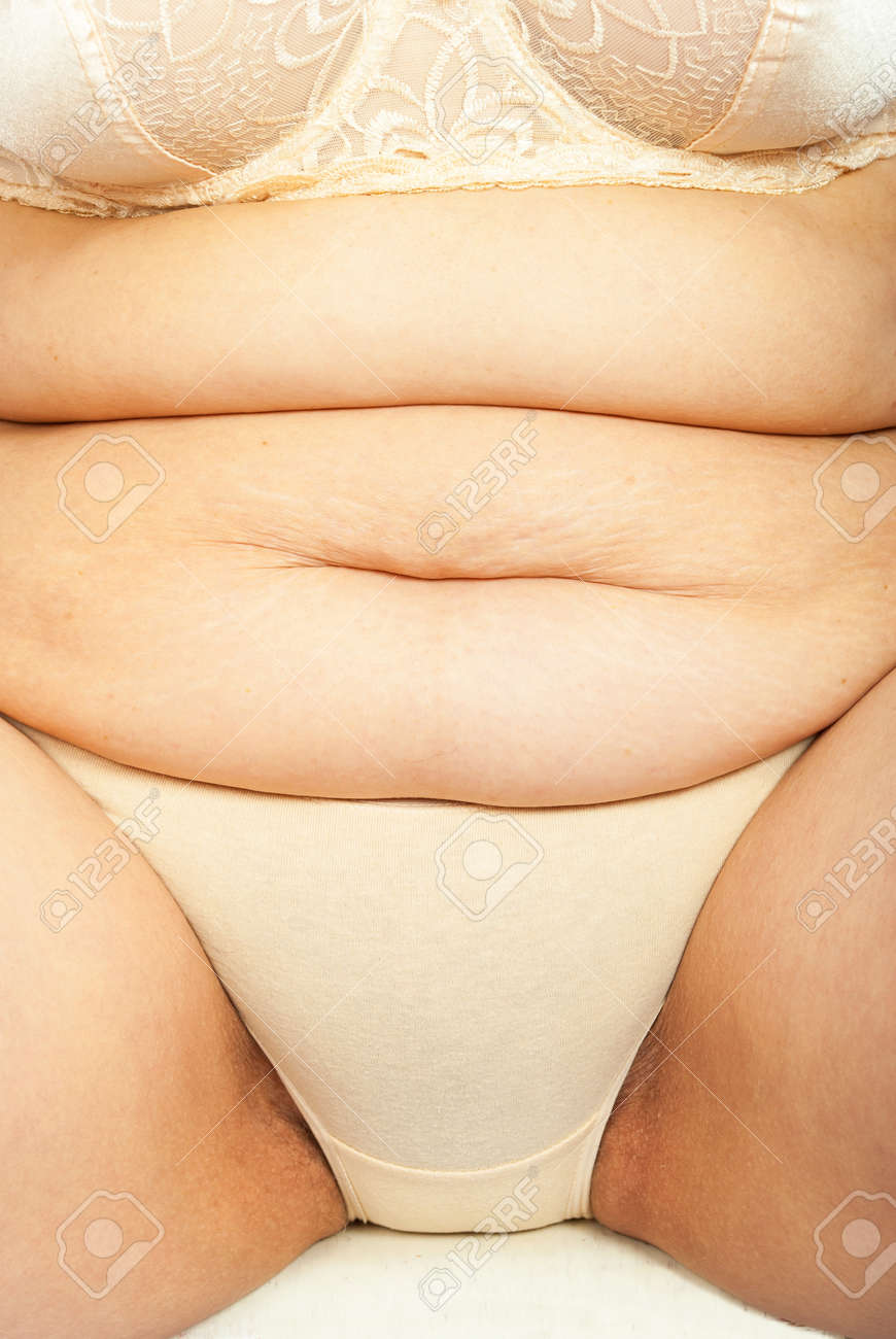 Women With A Cellulite On A Stomach Stock Photo Picture And Royalty Free Image Image 70312273