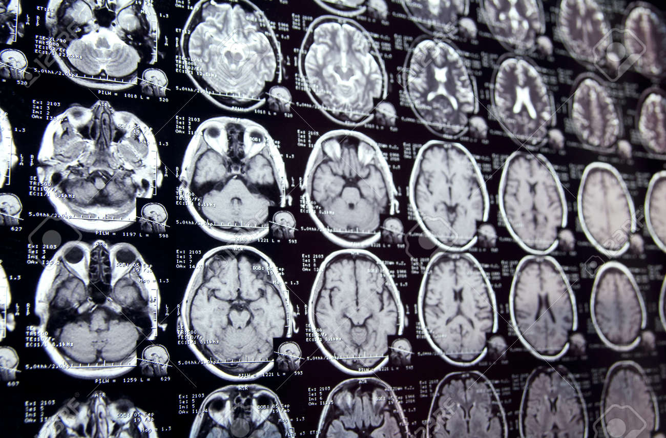 Increíble Cruz Mri Cerebro Anatomía Seccional Viñeta - Anatomía de ...