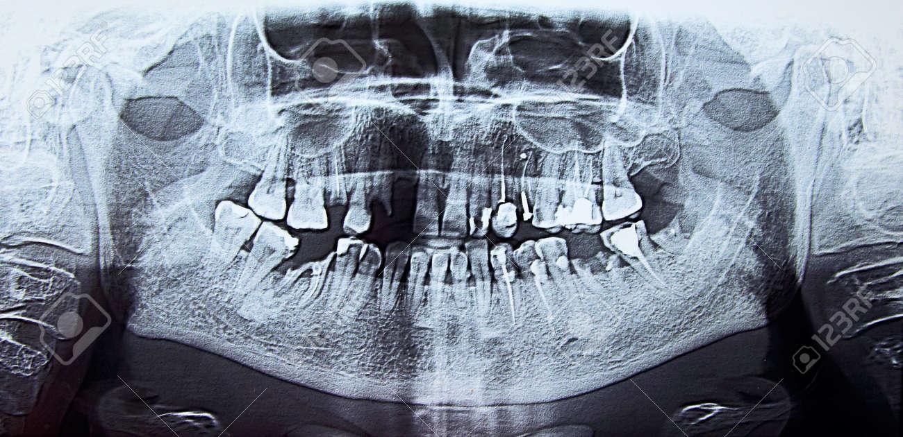 Ortopantomografía Panorámica De Rayos X Dentales De La Boca ...