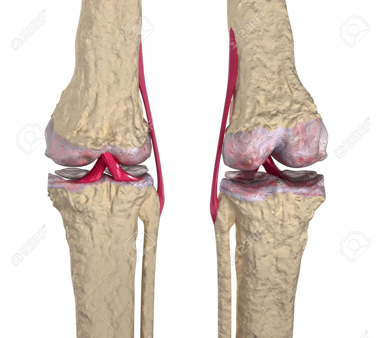 Arthrose: Kniegelenk Mit Bändern Und Knorpel Lizenzfreie Fotos ...