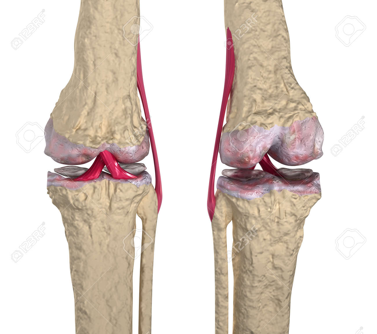 Osteoarthritis : Knee joint with ligaments and cartilages Stock Photo - 12377527