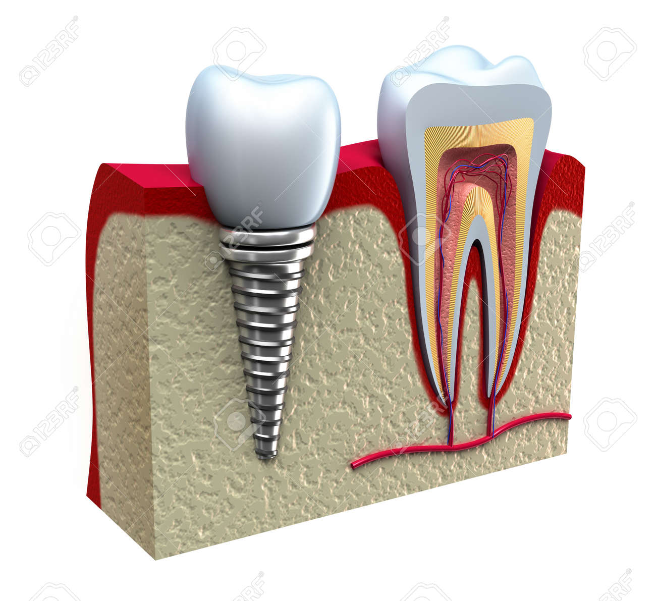 Anatomy of healthy teeth and dental implant in jaw bone Stock Photo - 12889006