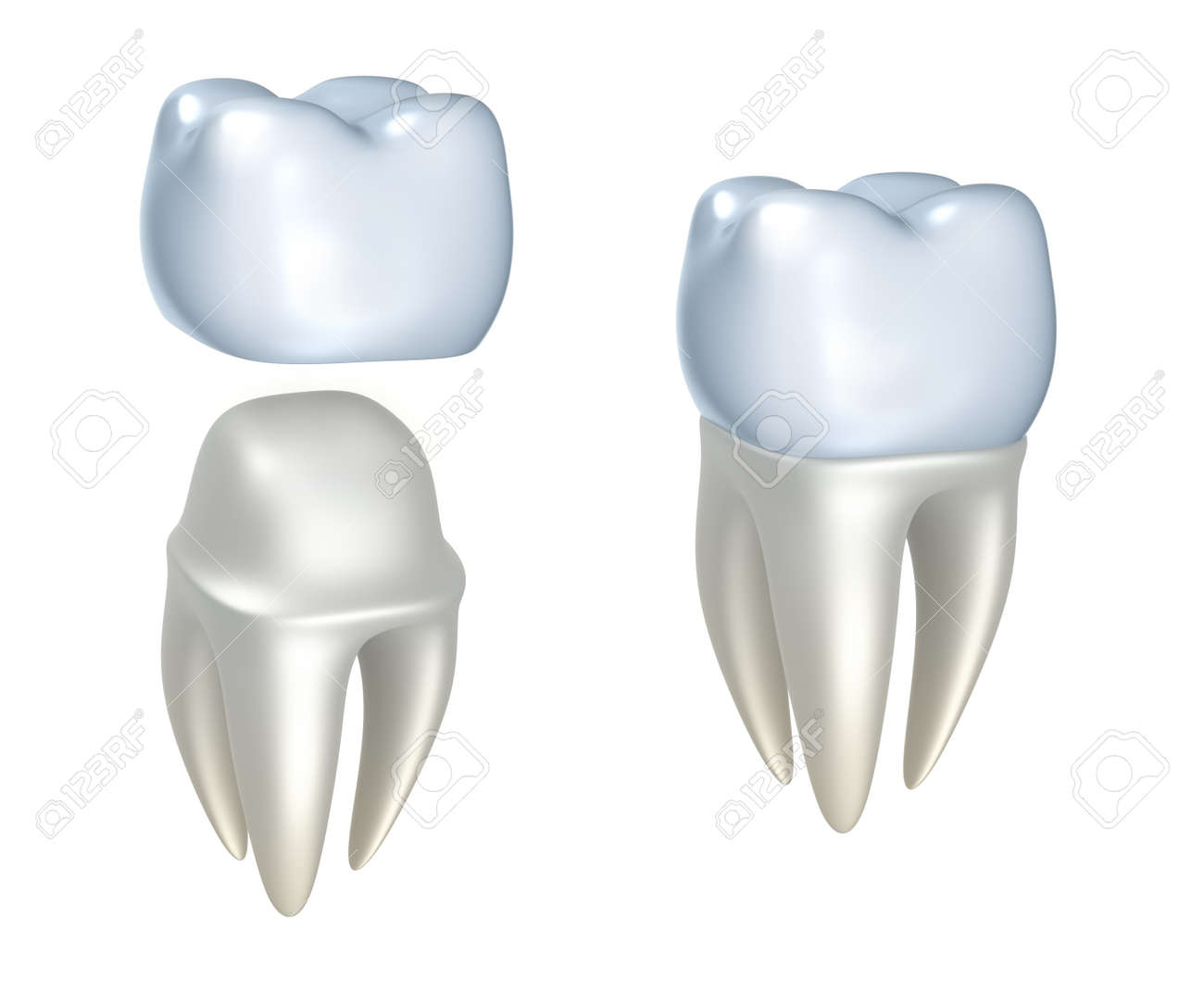 Dental crowns and tooth, isolated on white Stock Photo - 14453255