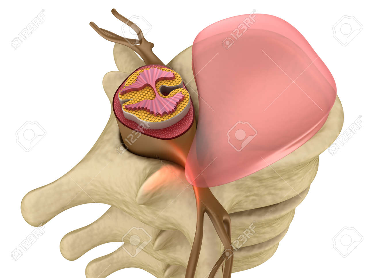 Prolapse Of Intervertebral Disc Closeup Stock Photo Picture And
