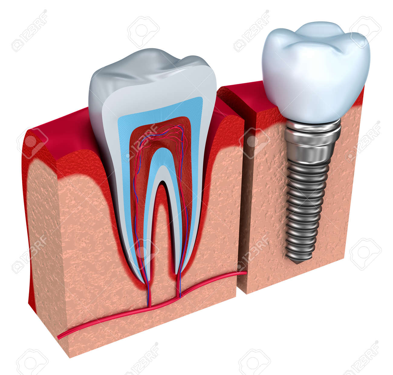 Anatomie Des Gesunden Zähnen Und Zahnimplantat In Kieferknochen ...