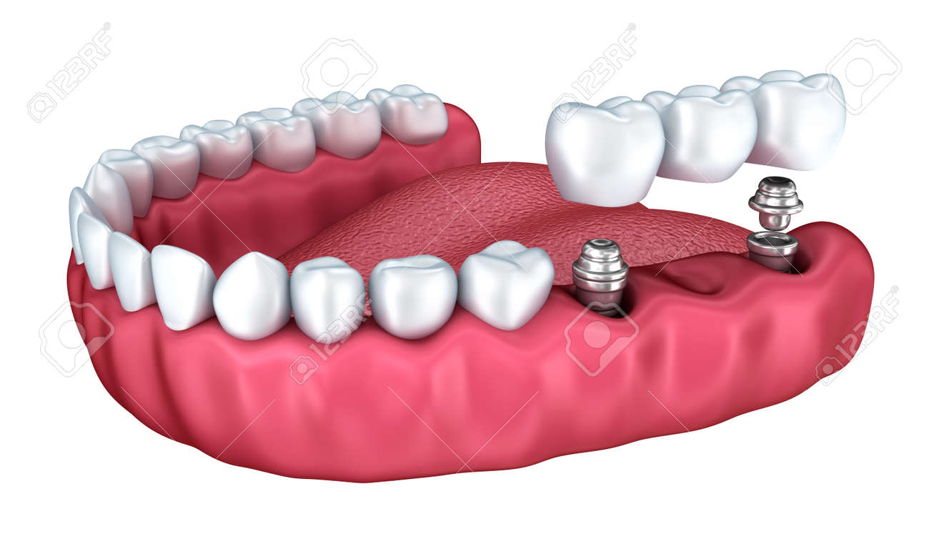 3d lower teeth and dental implant isolated on white Stock Photo - 40005773
