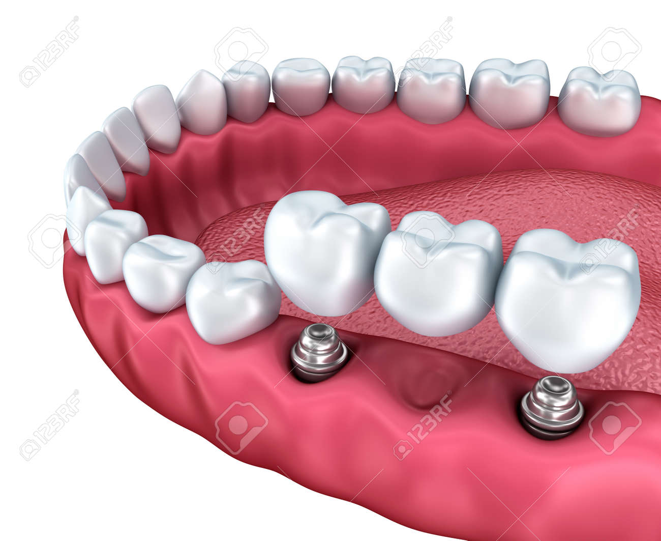 A closeup view of lower teeth and dental implants isolated on white Stock Photo - 40005774