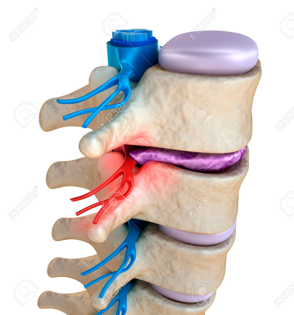 Spinal cord under pressure of bulging disc Stock Photo - 40009616