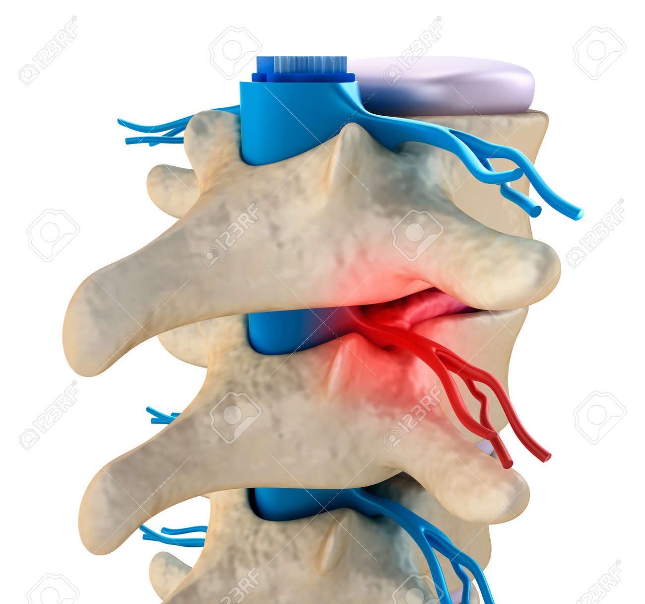 Spinal cord under pressure of bulging disc Stock Photo - 40009617