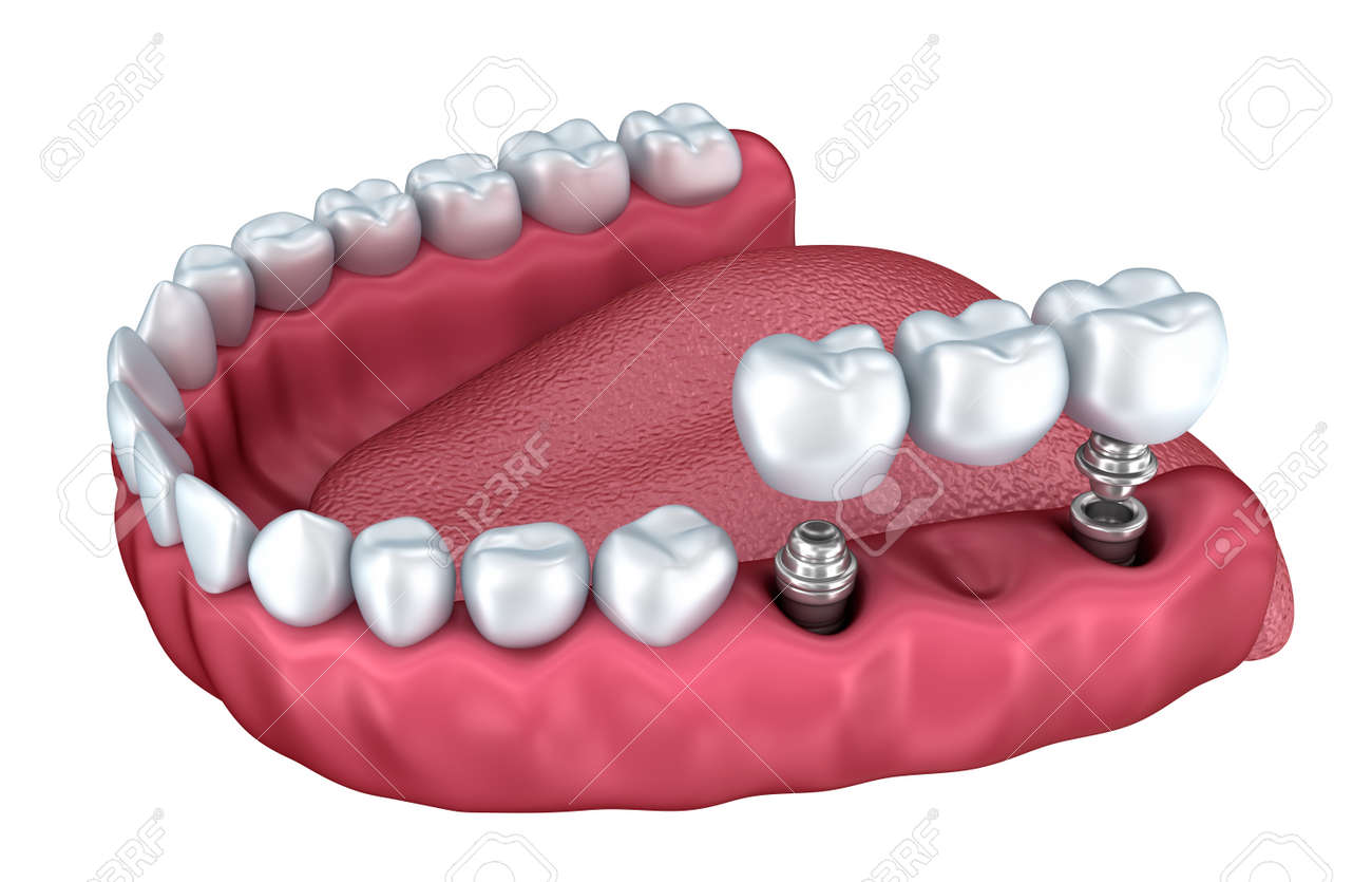 3d lower teeth and dental implant isolated on white Stock Photo - 44565133