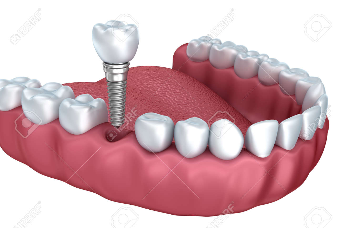 3d lower teeth and dental implant isolated on white Stock Photo - 44565357