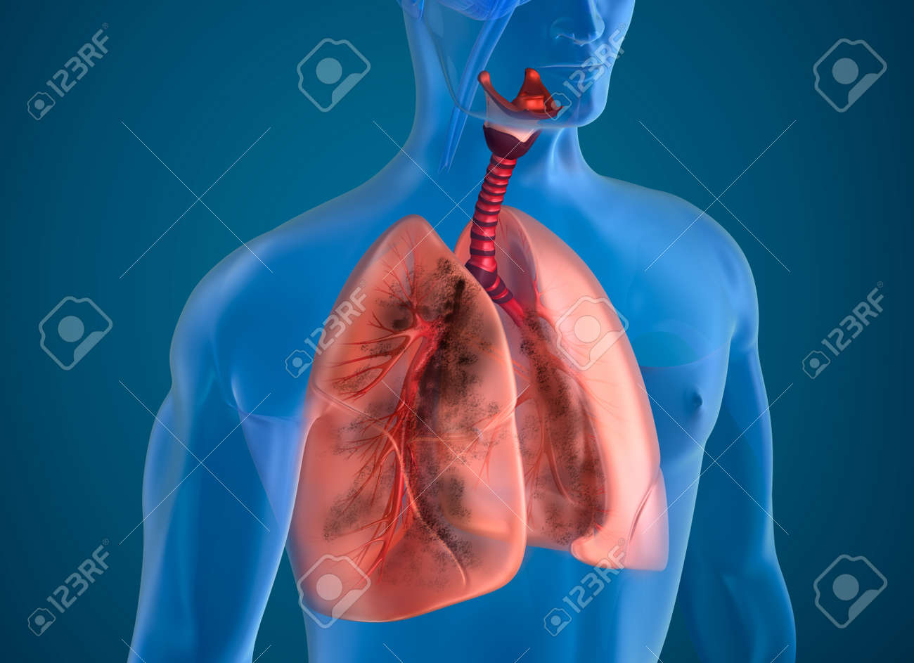 Diseased lungs x-ray view Stock Photo - 46737719