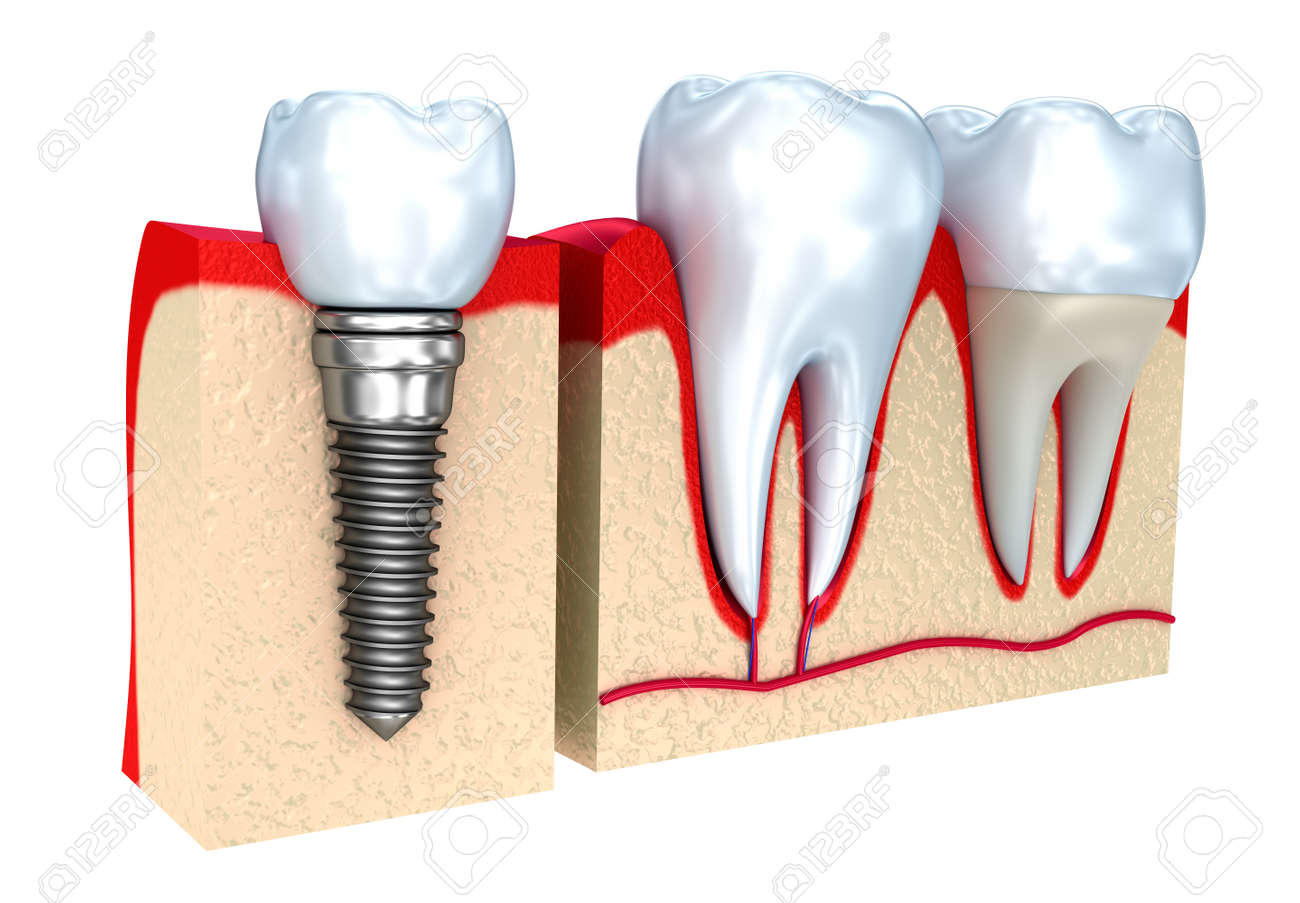 Dental crown, implant and teeth, 3d image. Stock Photo - 46737653