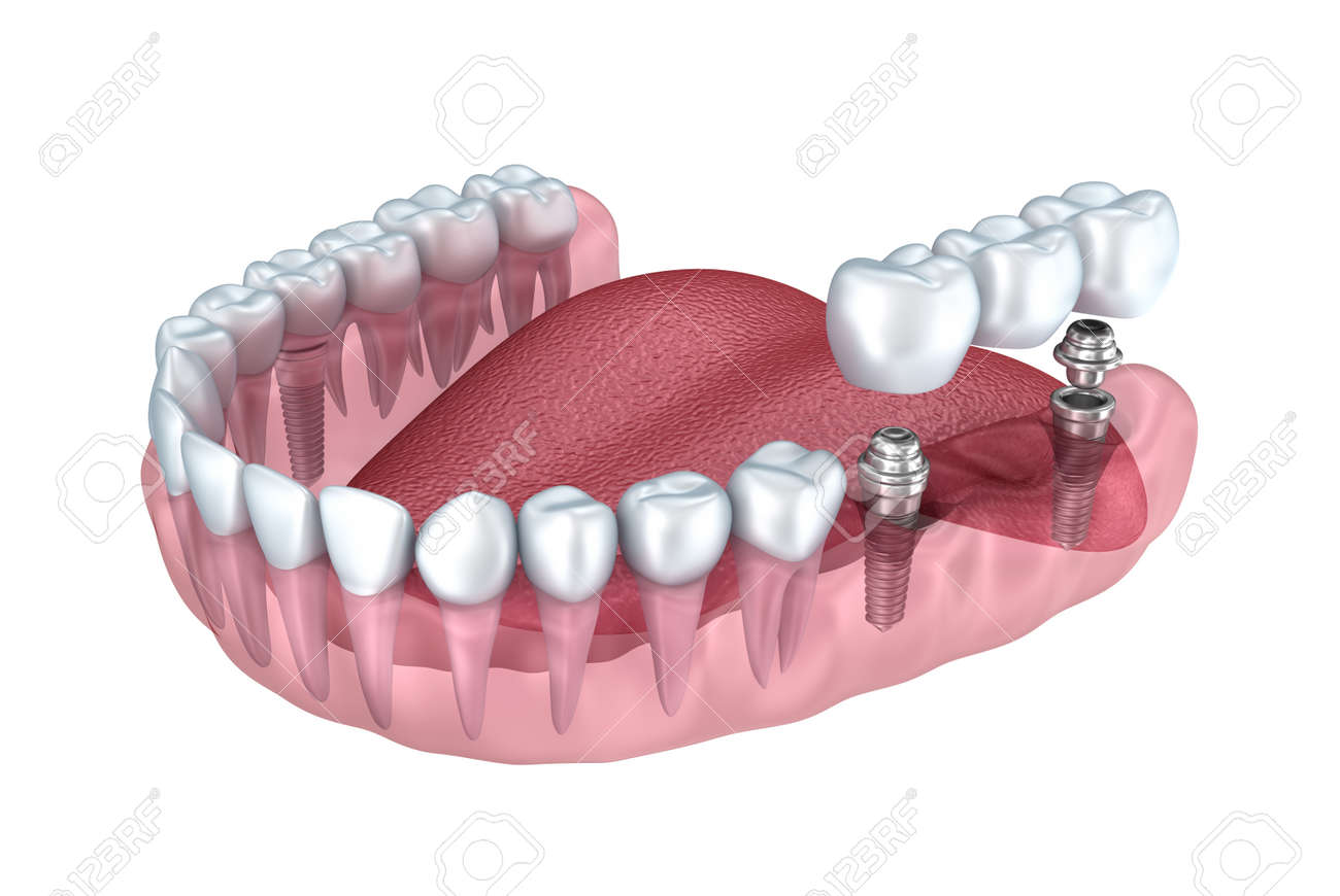 3d lower teeth and dental implant transparent render isolated on white Stock Photo - 47540556