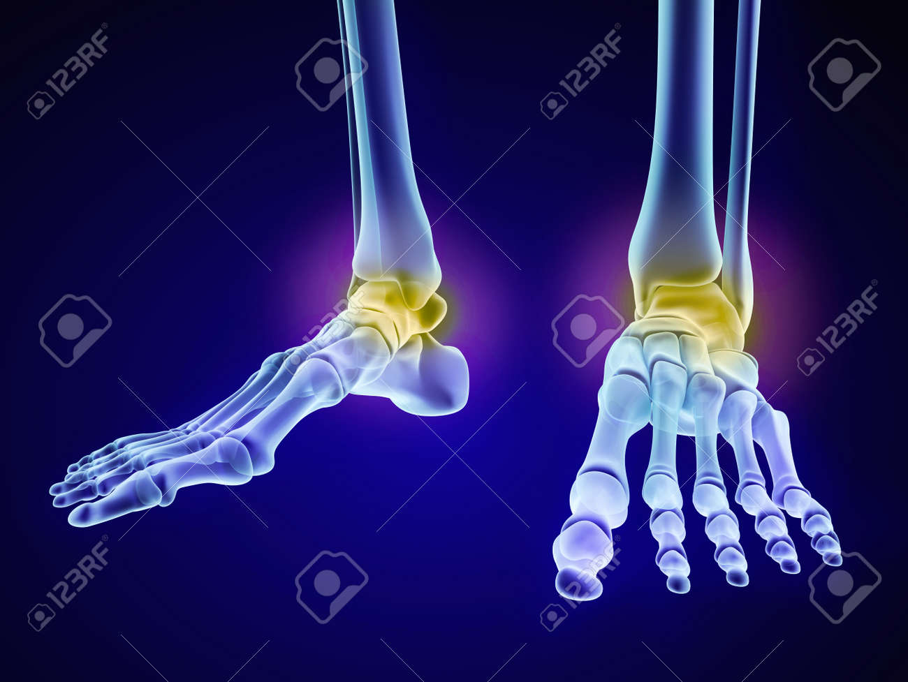 Esqueleto Del Pie - Hueso Astrágalo Injuryd. Vista De La Radiografía ...