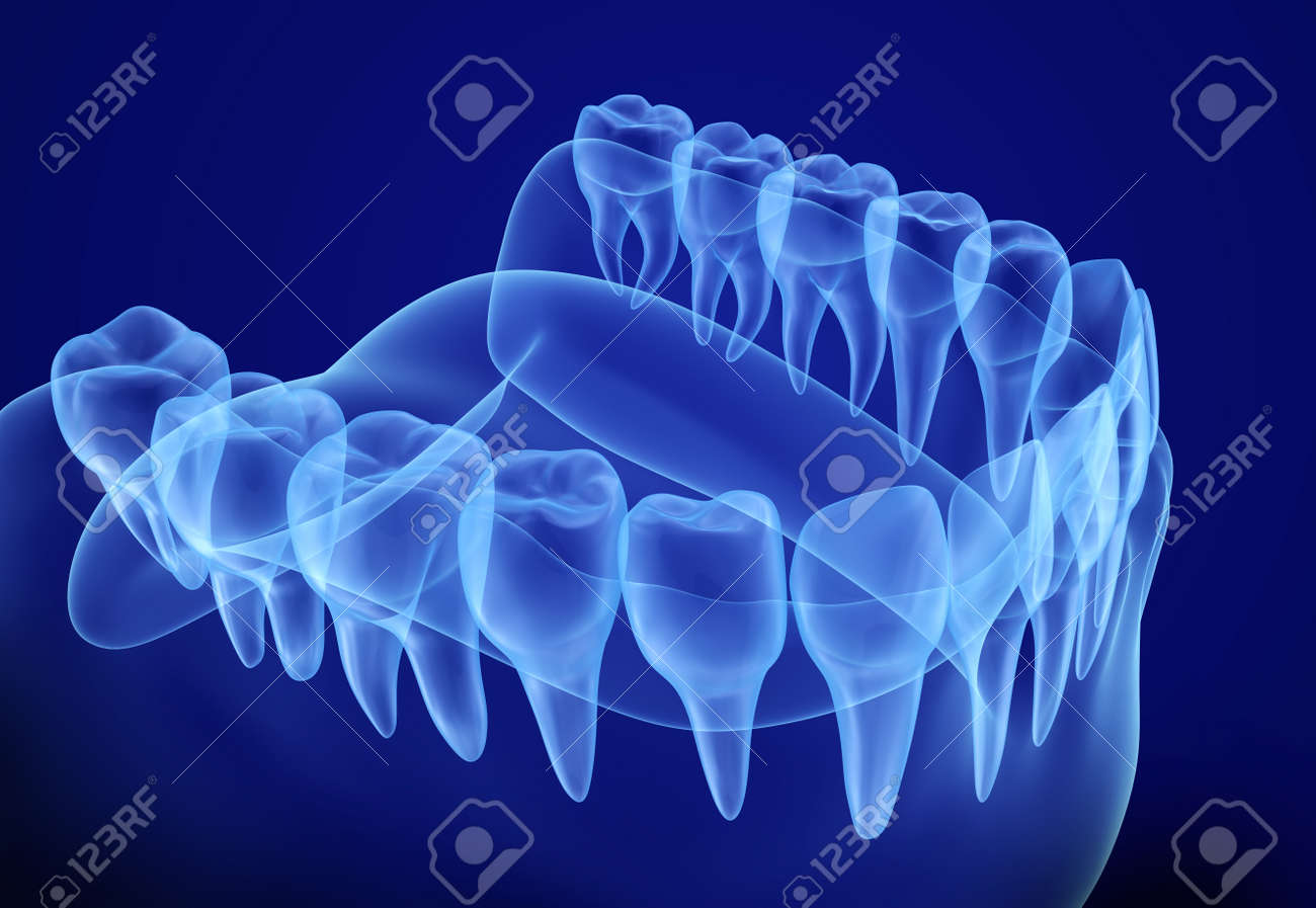 Mouth gum and teeth xray view. Medically accurate tooth 3D illustration - 66726798