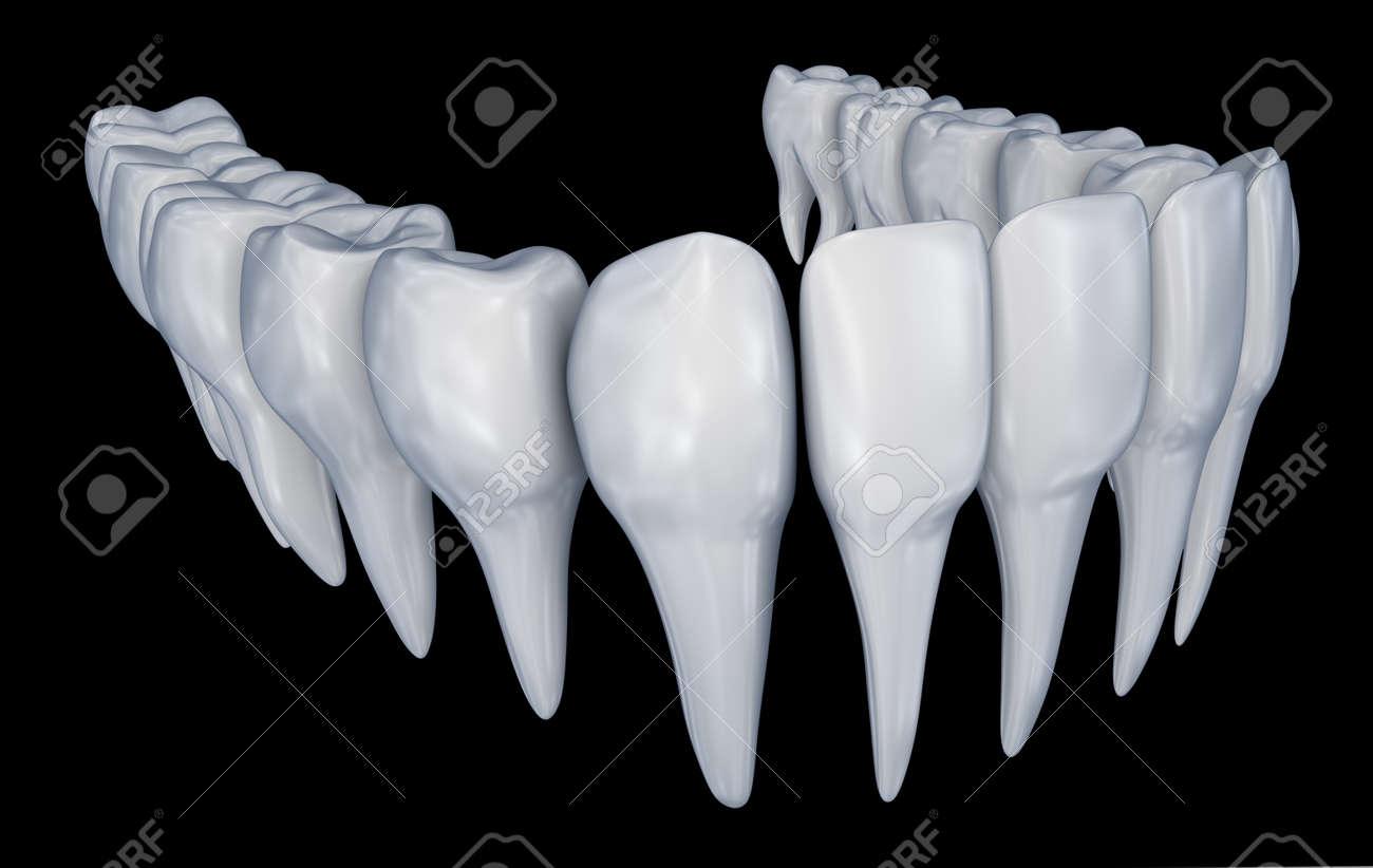 Menschliche Zähne 3d Instalation. Medizinisch Genaue Zahnheilkunde ...