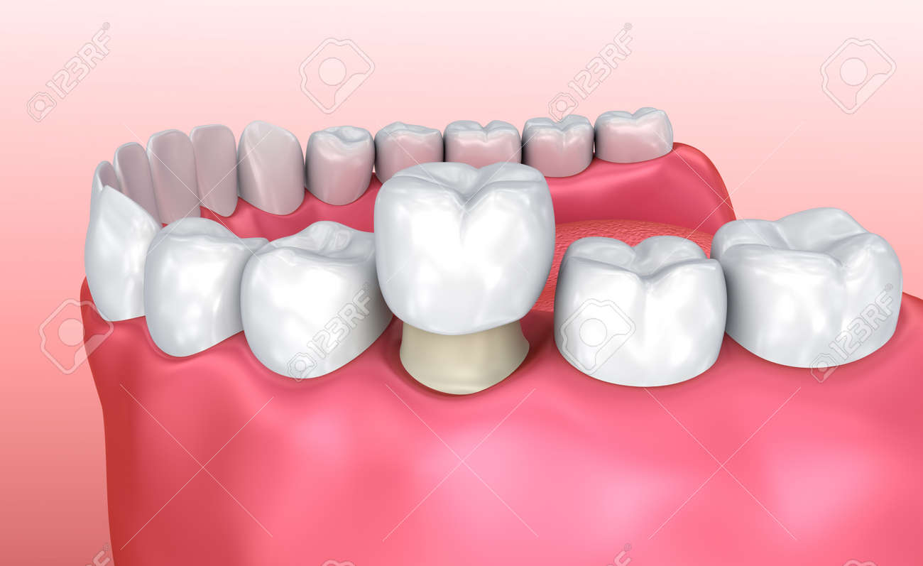 Dental crown installation process, Medically accurate 3d illustration - 88602552