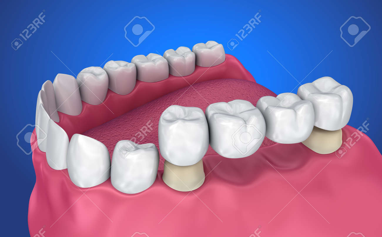 Tooth supported fixed bridge. Medically accurate 3D illustration - 88602558