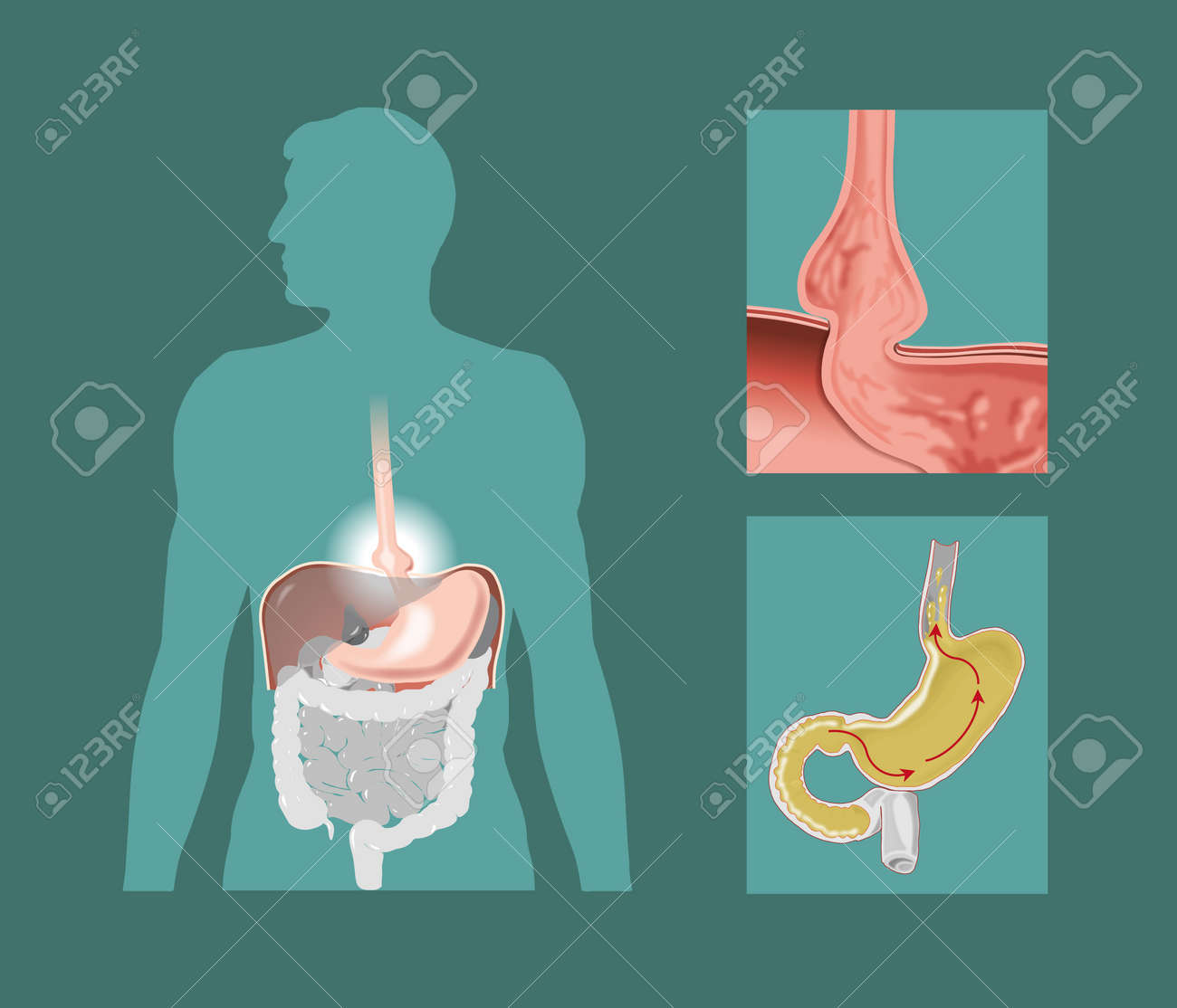 Schematic Drawing Of Hiatal Hernia Stock Photo, Picture And Royalty ...